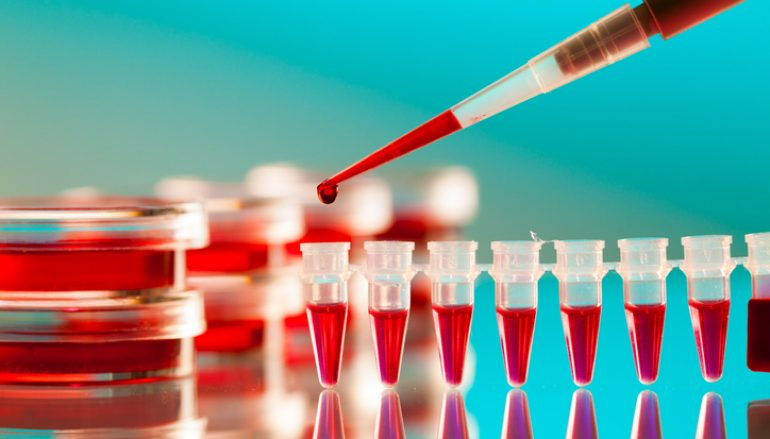Multi-Specialty Hepatitis C and HIV Clinic First of its Kind in Indiana