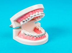 Orthodontics Manufacturer Adding Over 150 Jobs
